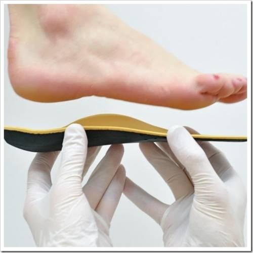 Для чего нужны индивидуальные ортопедические стельки